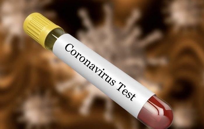 Erdhi nga Italia, konfirmohet rasti i parë me koronavirus në Maqedoninë e Veriut